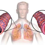 What Causes Asthma?